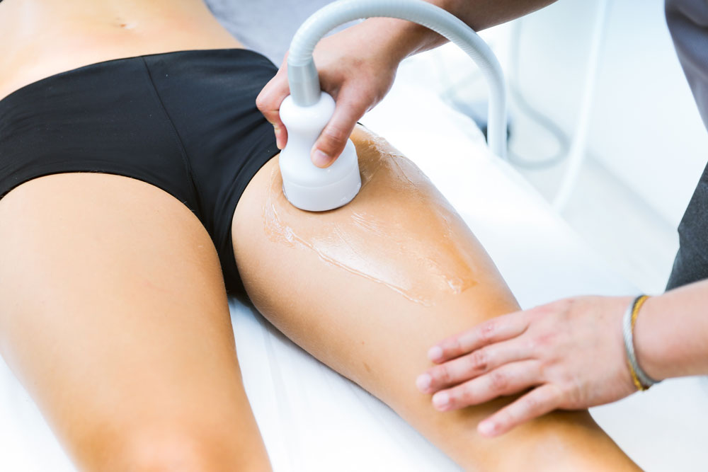 Crioterapia cellulite